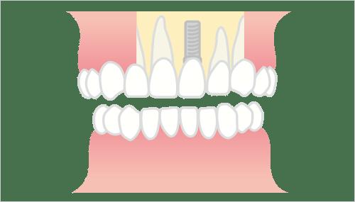 前歯部一本欠損の場合