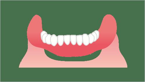 完全に歯がない場合