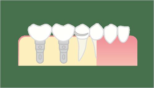 白歯部から歯が欠損している場合