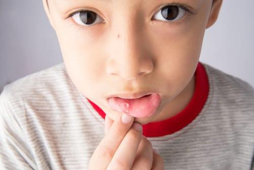 痛い 口内炎